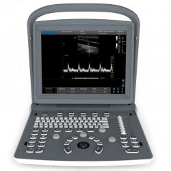 Ecógrafo Portátil Chison ECO 2 con Sonda Cardiaca: Doppler Espectral y optimización inteligente de la imagen