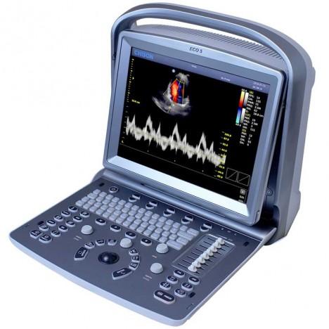 Ecógrafo Portátil Chison ECO 5 con Sonda Convexa de 3.5 MHz: Doppler a color con pantalla de 12 pulgadas