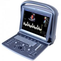 Ecógrafo Portátil Chison ECO 5 con Sonda Lineal de 5.3-11.0 MHz: Doppler a color con pantalla de 12 pulgadas