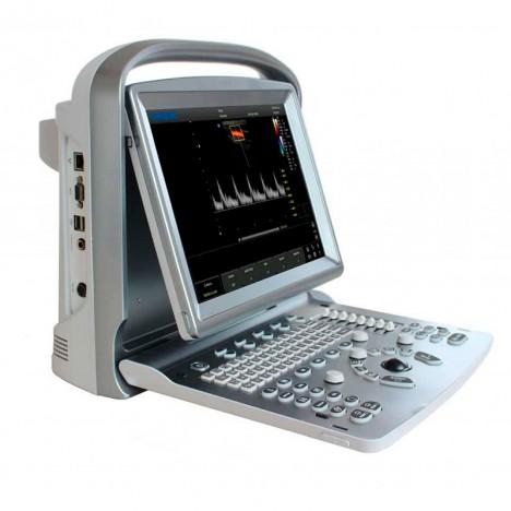 Ecógrafo Portátil Chison ECO 6 con Sonda Convexa: El más potente y con mejor calidad de imagen de la familia ECO