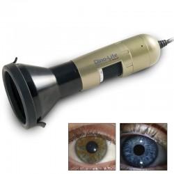 Iriscopio Dino-Lite: Permite crear fácilmente imágenes nítidas de los ojos y los iris