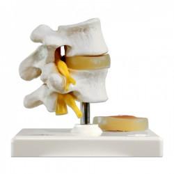 Discos vertebrales lumbares con hernia discal
