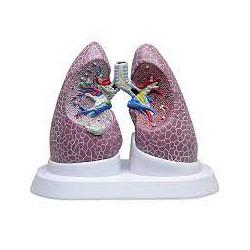 Conjunto de pulmón con patologías