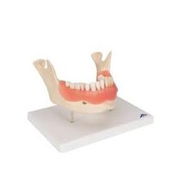Afección dental, a 2 aumentos, de 21 piezas - 3B Smart Anatomy