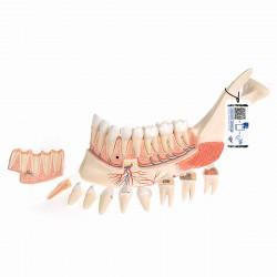 Mitad de la mandíbula inferior con 8 dientes cariados, 19 piezas - 3B Smart Anatomy
