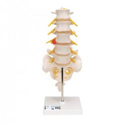 Columnavertebral lumbar con hernia discal dorsolateral - 3B Smart Anatomy