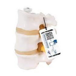 Tres discos vertebrales, montados flexibles - 3B Smart Anatomy
