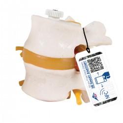 Discos lumbares, con hernia discal. Montados flexibles sobre soporte - 3B Smart Anatomy