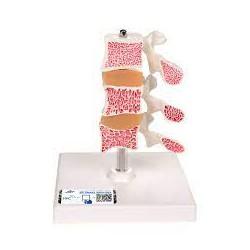 Modelo de osteoporosis – Versión de Lujo (3 Vertebrales) - 3B Smart Anatomy