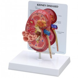 Modelo de riñón enfermo
